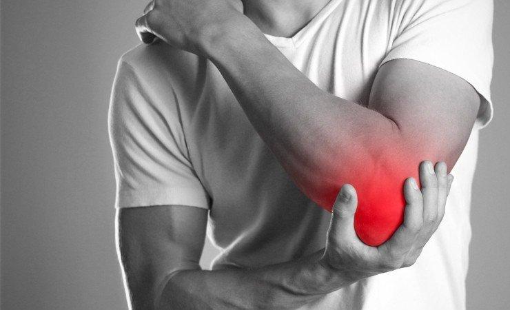 Epicondilite lateral | Dra. Verônica Chang