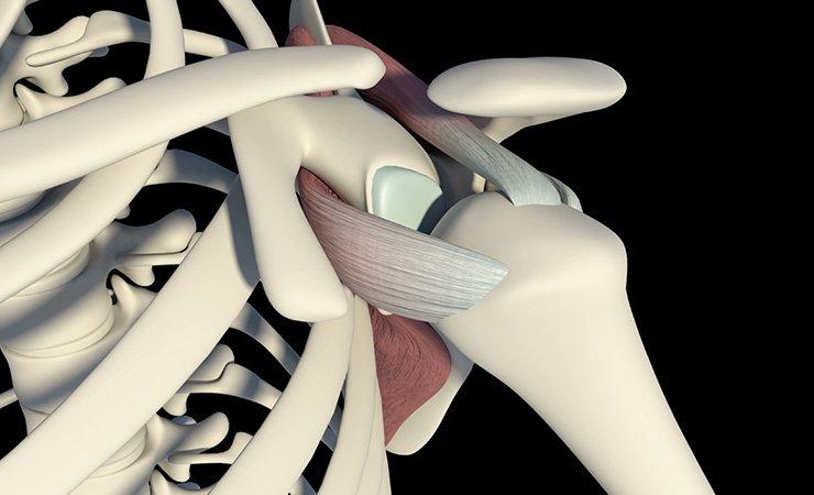 Lesão Do Manguito Rotador | Dra. Verônica Chang