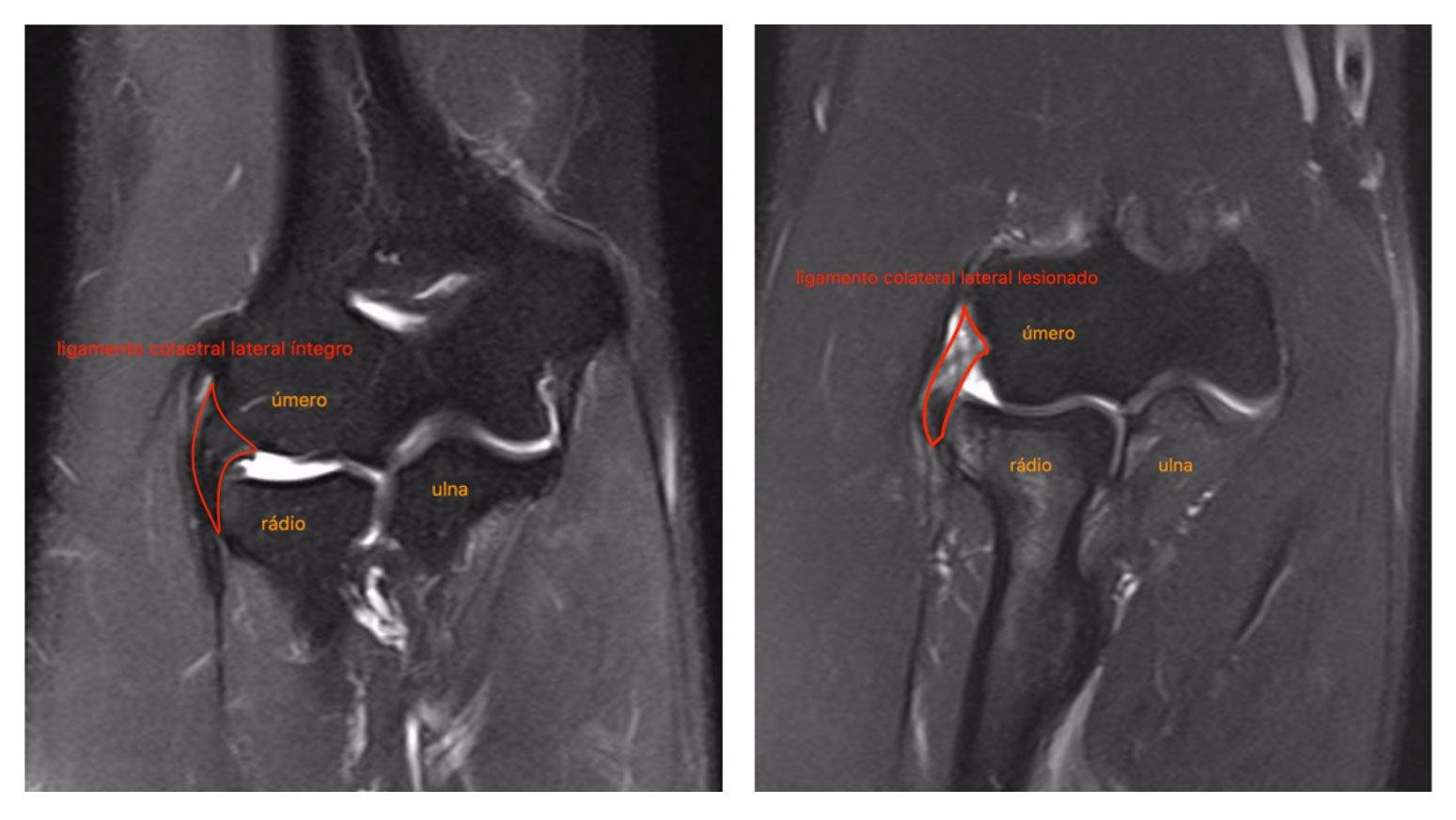 Ligamento Colateral Lateral | Dra. Verônica Chang